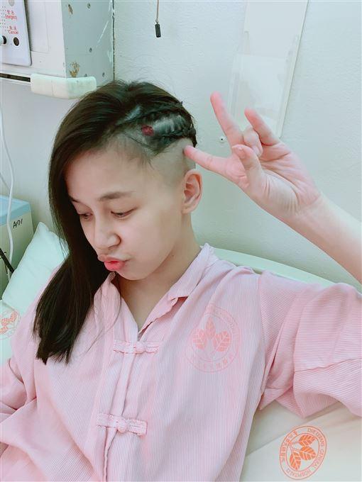 陳筱蕾,女星得腦瘤,面癱(陳筱蕾提供)
