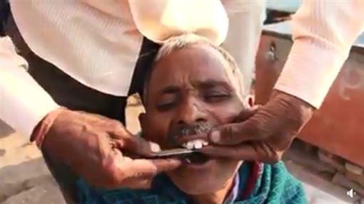 街頭牙醫,看牙,感染,拔牙,印度/翻攝FACEBOOK