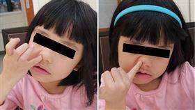 鼻孔會愈挖愈大?醫曝亂摳「3下場」
