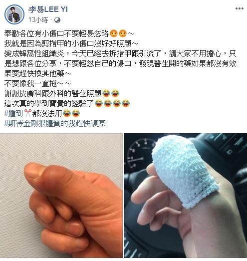 李易,指甲,蜂窩性組織炎,傷口 圖/臉書