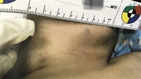 台南滿月男嬰遭父親毆打傷勢圖(翻攝畫面)