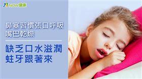 名家專用/NOW健康/習慣張口呼吸,可能容易增加蛀牙風險。(勿用)