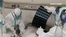 武漢肺炎再擴散 德國.斯里蘭卡病例確診