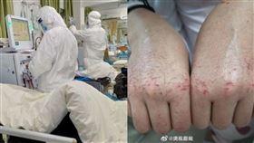醫護人員,護士,消毒,雙手,龜裂,22歲護士,辛苦,微博