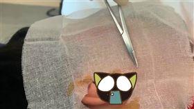 同事耳朵受傷 援鄂醫生用頭髮縫合(圖/翻攝自梨視頻)