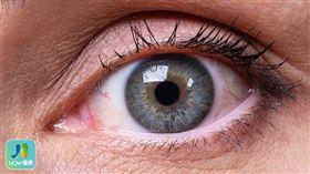 名家專用/NOW健康/頸動脈海綿狀竇廔管造成的紅眼症狀為結膜上一條條螺旋狀膨大的血管,仔細看仍可一般結膜炎做區分。(勿用)