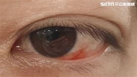 童綜合醫院,眼科,李光洲,急性眼結膜下出血