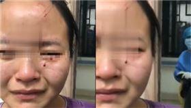 患者,咬傷,不配合,治療,廣州