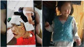 遭繼母揍到腦出血…4歲女童生父當共犯!身分曝光是館長(圖/翻攝自封面新聞)