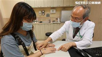 防疫戴乳膠手套 28歲女流淚手紅腫