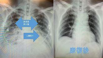 小感冒一週後竟胸悶氣喘成「心肌炎」