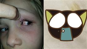 美國小女孩遭蟲蟲入侵,眼球流膿,9小時後才自己排出。(圖/翻攝自Kris Monk臉書)