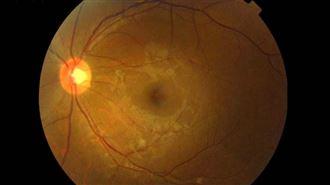 一張視網膜影像 它看出心血管發病率