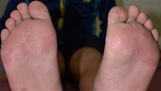7歲童腳掌脫屑龜裂 其實不是香港腳