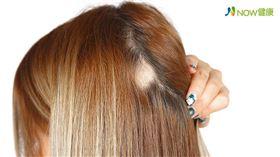 名家專用/NOW健康/女性常見的掉髮類型包括鬼剃頭、圓形禿、脂漏性(細菌感染)掉髮、雄性禿,其實根本原因皆出自頭皮膚是否健康。(勿用)