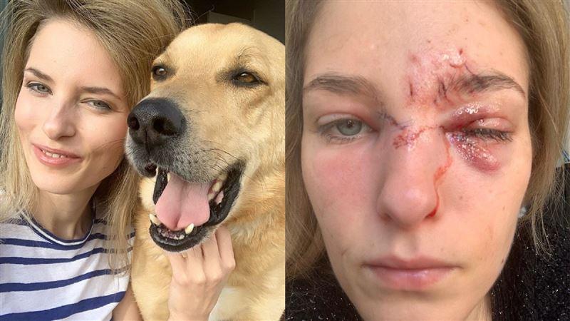領養搜救犬發狂 名模「毀容」險失明