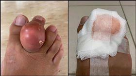 腳趾,雞蛋,腫起,關節炎,寄生,痛風,爆開