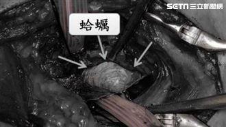 吃海鮮粥太急 4公分蛤蜊變食道殺手