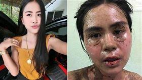 泰國,止痛藥,牙痛,過敏,布洛芬,ibuprofen。(圖/翻攝自當事人臉書)