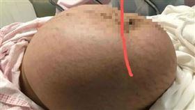 19歲少女生產 腹中藏巨大腫瘤…比寶寶大5倍(圖/翻攝自微博)