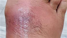 調養身體去針灸  扎針處紅腫變蜂窩性組織炎40多歲男子接受針灸治療調養身體,但扎針的腳背皮膚紅腫,原以為是被蚊蟲叮咬,卻越腫越大、甚至痛到無法行走,到醫院急診經醫師檢查後發現,是細菌造成感染引發蜂窩性組織炎,搭配抗生素藥物治療後,傷口已逐漸好轉。(門諾醫院提供)中央社記者李先鳳傳真 109年6月15日