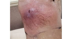 蜂窩性組織炎(圖/門諾醫院提供)