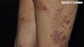 濕疹(皮膚科醫師黃毓惠提供)