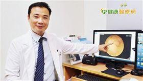 何明山醫師表示,視網膜靜脈阻塞形成的原因是血壓高所造成血管壁壓力增加,使得管壁逐漸硬化,當血管壁發生病變時,會引發血栓,容易引起視力損傷,甚至失明。