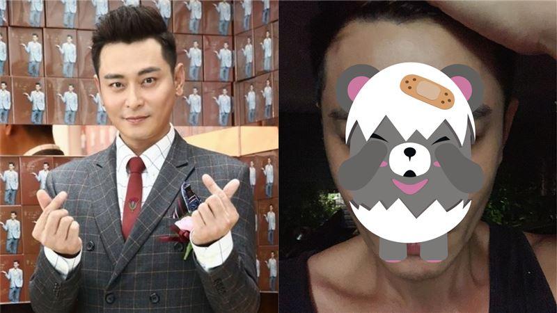 陳冠霖驚曝「散彈槍中彈」 網超擔心