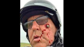 騎車,石頭,臉頰,崁入,凹洞