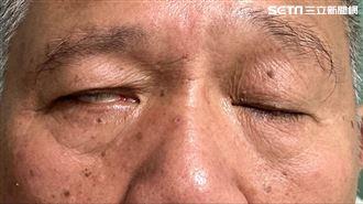 皮蛇纏身延誤治療 65歲男視力受損