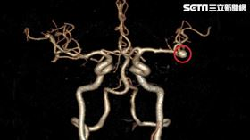 開顱手術,電腦斷層,大腦動脈瘤,台北慈濟醫院,神經外科,徐賢達(圖/台北慈院提供)