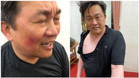 王定宇自己也在臉書貼出三張照片表示,不敢說這樣是「皮開肉綻」,議事激烈衝突難免(圖/合成圖翻攝自羅美玲、王定宇臉書)