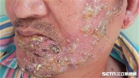 「皮蛇」/帶狀皰疹(南投醫院提供)