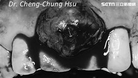 牙齦腫大地方不僅沒消退,範圍還愈來愈大,形成一團類似肉瘤東西(圖/安南醫院提供)