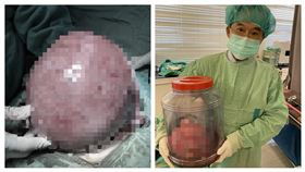 子宮肌瘤(愛麗生婦產科院長潘俊亨)