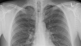 肺癌若發生遠端轉移將提高治療困難度。(示意圖/Pixabay)