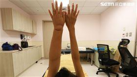 61歲乳癌婦患淋巴水腫 手腫大成「米其林手」(圖/亞大醫院提供)
