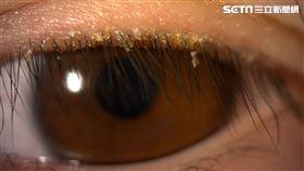 嚇!家政婦雙眼紅爆癢 一照眼睫毛竟爬滿蠕形蟎蟲(圖/亞大醫院提供)