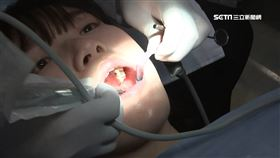 驚!牙縫卡菜渣形成牙結石 醫師警告:錯誤清潔恐越剔越髒