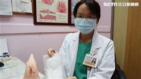 女陰部紅腫痛癢、冒酸臭豆腐渣 醫剪開衛生棉一看傻了(圖/台北醫院提供)