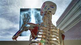 肺部X光(Pixabay)