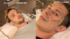 ▲路易與元元一起在台灣體驗美容針灸。(圖/Bonjour Louis! 我是路易 授權)