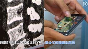 中國不到20歲男,長期玩手遊玩到椎間盤突出,下肢無力,雙腿麻木。(圖/翻攝自看看新聞)