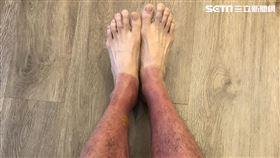 嚇!4小時獨木舟之旅 45歲男腿曬爆變紫芋、傷及真皮層(圖/書田診所)