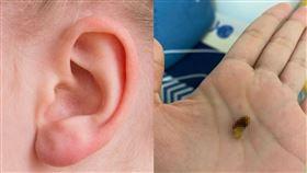 耳背,掏耳棒,棉花棒,耳朵,耳鼻喉,異物(翻攝自 Pixabay、Dcard)