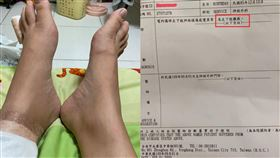 台南,知名連鎖火鍋店,電磁爐爆炸,癱瘓,保險業務