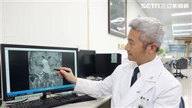 大林慈濟醫院副院長陳金城醫師(圖/大林慈院提供)