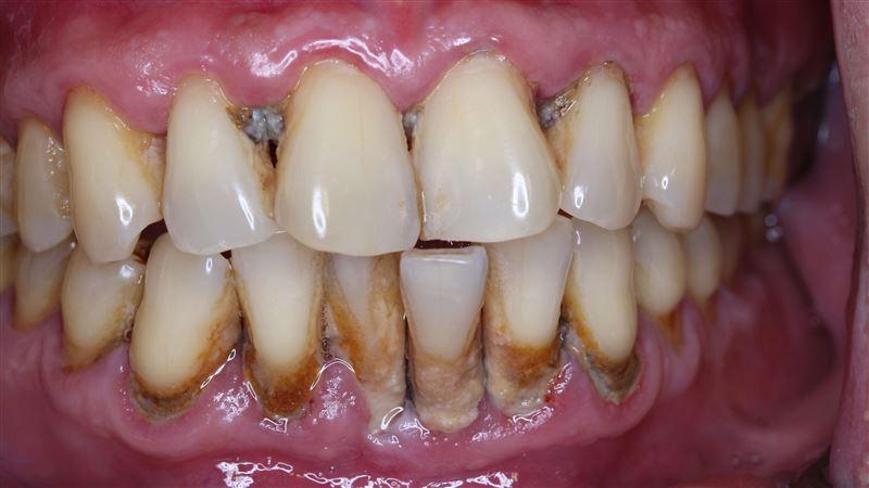 牙周病是沉默殺手 醫曝這11人危險