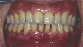 德威國際牙醫醫院提供